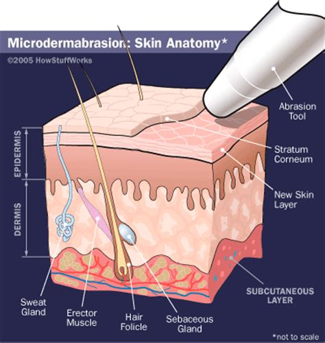 cost to remove stretch mark picture 14