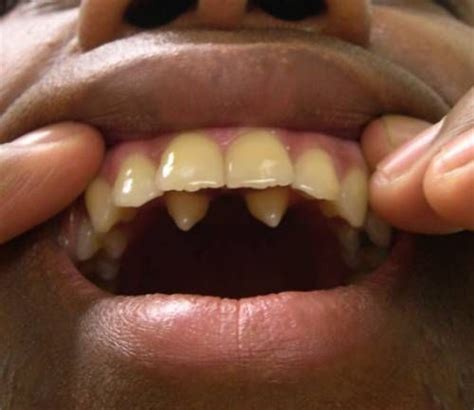 do canine teeth grow back picture 5