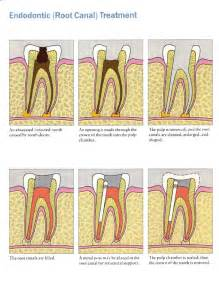teeth rootcanel picture 3