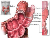 best hospital to treat colon cancer picture 11