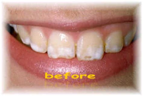 fluoride damaged childrens teeth picture 6