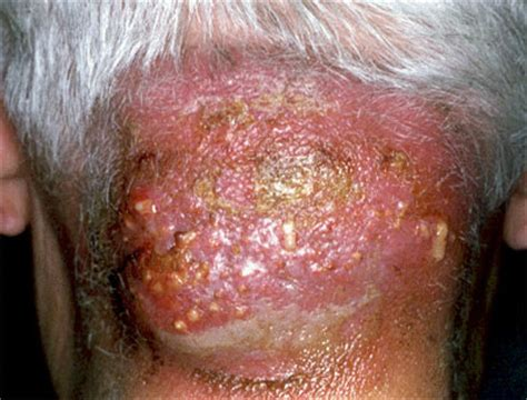 mrsa hair loss boils on scalp picture 4