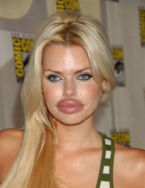 pic big lips picture 2