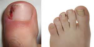 home remedies for toe nail fungus picture 11