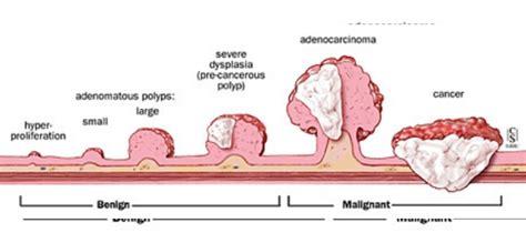 colon polyps naturopathic medicine picture 3