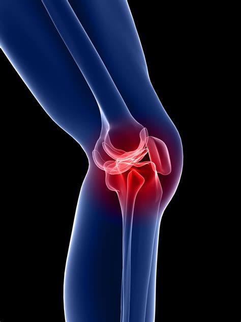 knee joint pain remedies picture 6