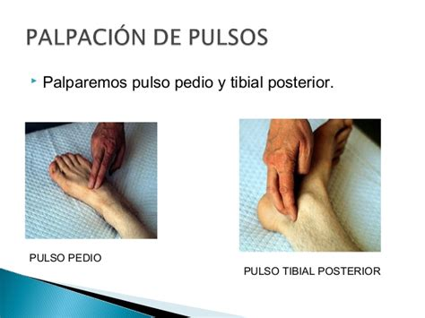 diabetic foot problems picture 17