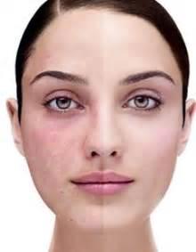 herbal na gamot para sa hormonal imbalance symptoms picture 13