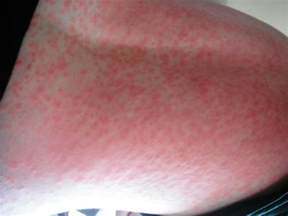 side effects of hives picture 15