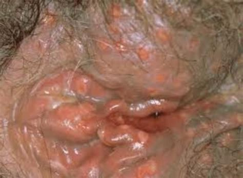nutritional yeast amd herpes picture 14