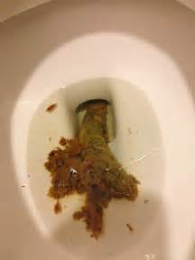 strange objects in and colon picture 3