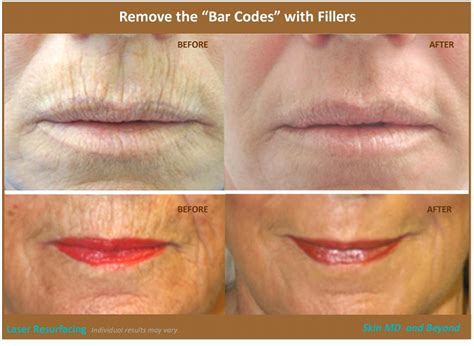 collagen lips picture 9