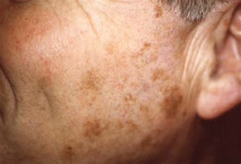 liver failure boils on skin picture 14