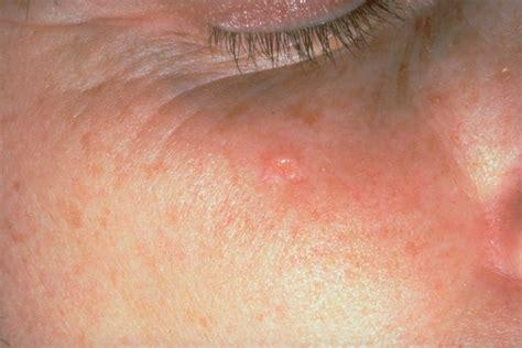 acne that looks like en skin picture 13