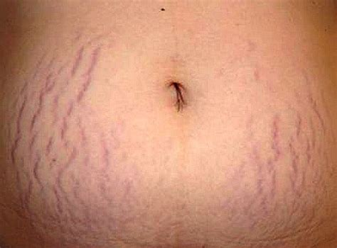 can white stretch marks appear without being another picture 8