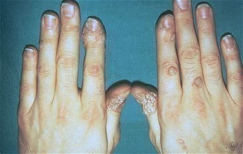 hip pain at leg joint and genital wart picture 3