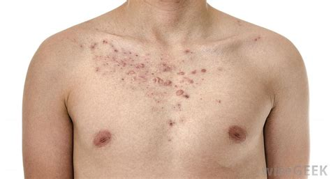 does c4 cause chest acne picture 5