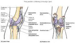 joint effusion suprapatellar region and medial joint compartment picture 14