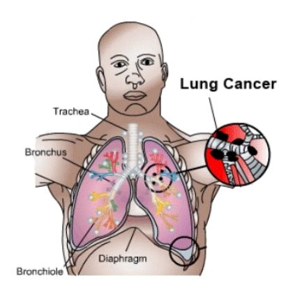 what herb cure fuild in lung picture 2