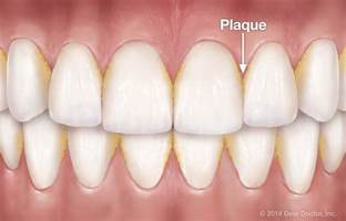 supplements that destroy tooth plaque picture 19