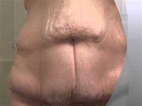 loose skin after weight loss picture 2