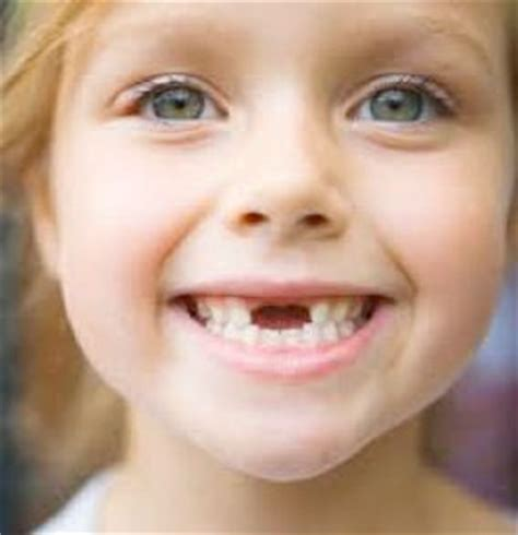 child's health loose teeth picture 5