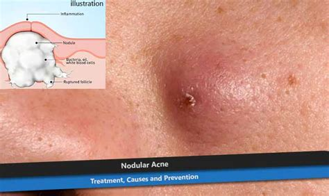 nodnuel cystic acne medical definition picture 11