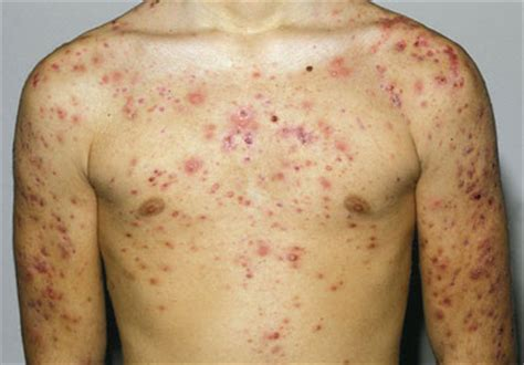 back and shoulder acne picture 2
