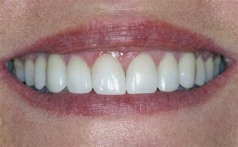 antibiotic side effects discoloring teeth picture 10