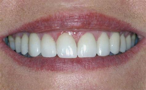 antibiotic discoloring teeth picture 18