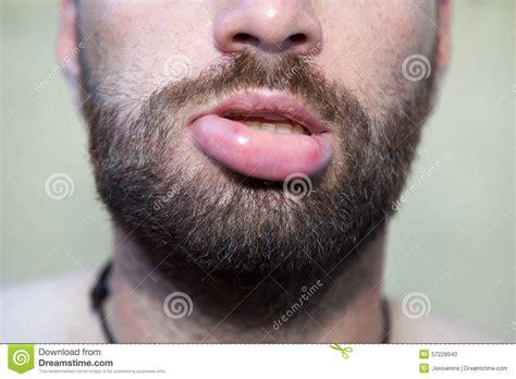 free pics swollen lips picture 1