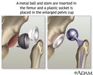 image of hip replacement joint picture 10