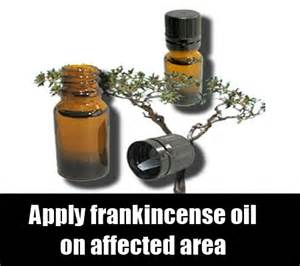 frankincense oil for ganglion cysts picture 5