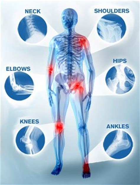 muscle ache joint pain picture 6