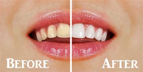 ashburn teeth whitening picture 10
