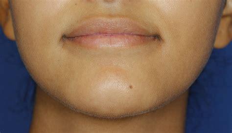 skincare pro dr. youn dimple battling treatments picture 3