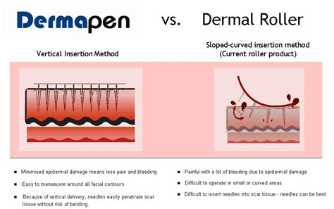 can you have a shower after dermapen treatment picture 1