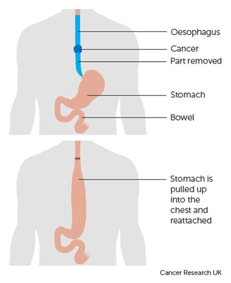 treatment of colon cancer picture 11
