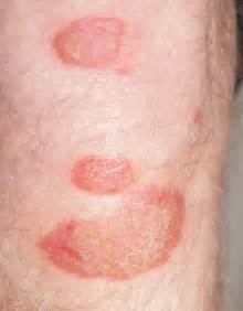can losing weight cause skin rashes picture 7