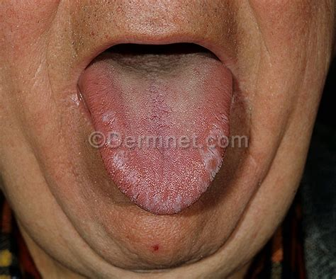 yeast in mouth picture 6