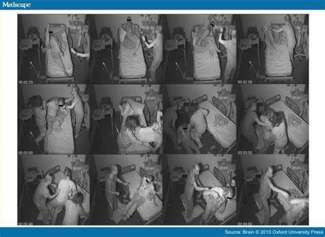 sleep convulsions picture 6