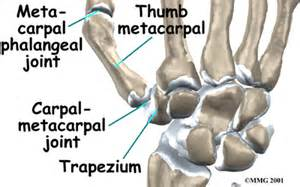 cmc joint and ganglion picture 6