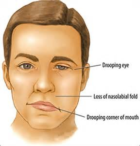 herbal remedies bell's palsy picture 1