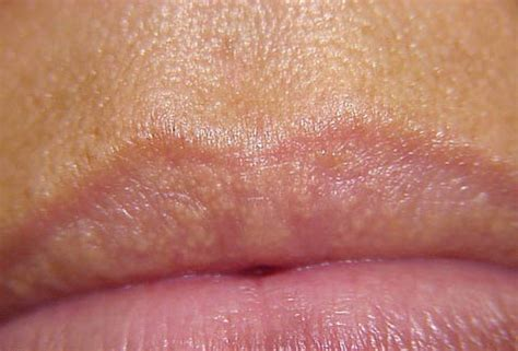 what are dark spots above lip line in picture 4