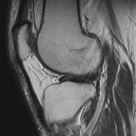 cyclops lesion knee joint picture 15