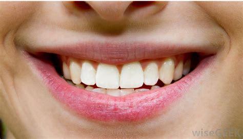 whiten calcium tooth picture 17