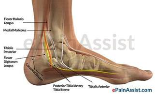 ankle joint effusion and ruptured archilles tendon picture 6