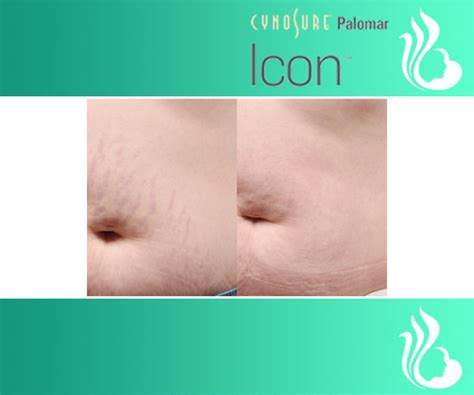 stretch mark removal surgery picture 10