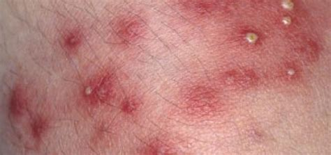 boils infections picture 1