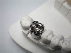 silver teeth caps picture 1